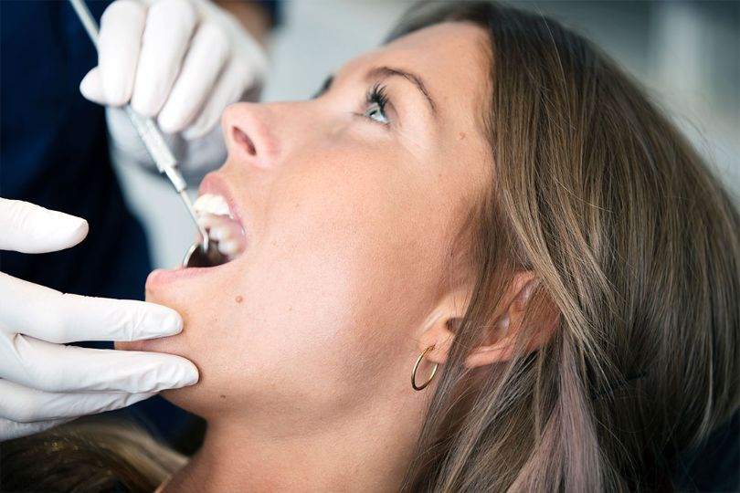 Effektiv afblegning af tænder hos Svaneklinikken Østerbro